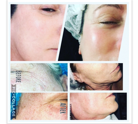 Microdermabrasion at Urban Beauty Meanwood Leeds